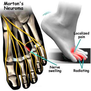 Cirugía neuroma de Morton